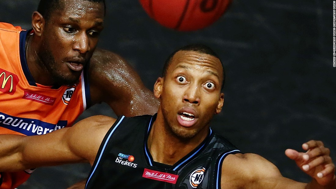 eyeball basketball player s eye pops out of socket cnn