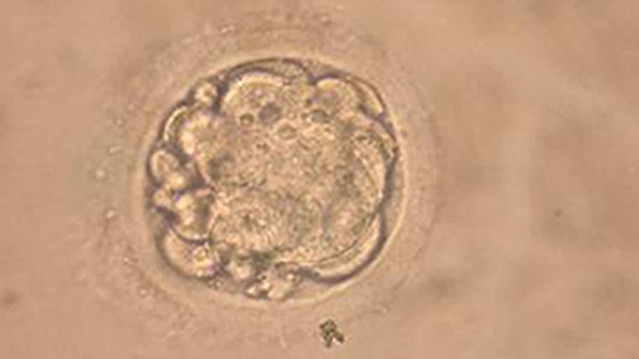 SEOUL, SOUTH KOREA - FEBUARY 12: This undated microscopic photo shows a cloned human embryo used to generate stem cells during an experiment in Seoul. South Korean researchers said they had cloned a human embryo February 12, 2004 and extracted embryonic stem cells from it. (Photo by Seoul National University/Getty Images)