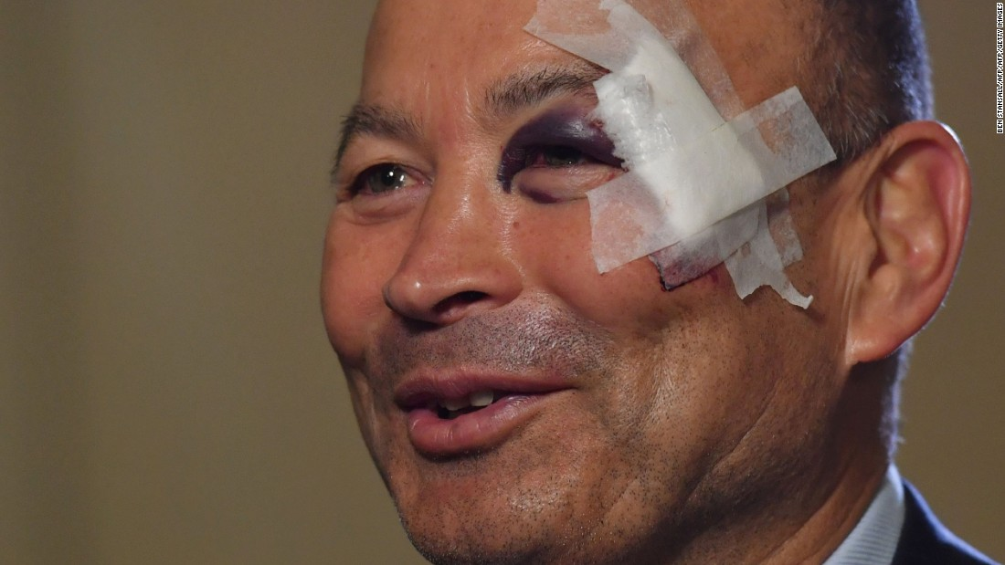 Since taking over from Stuart Lancaster after the World Cup, former Australia and Japan coach Eddie Jones has guided largely the same squad of players to 13 successive victories. His only black eye so far came on the eve of the 2017 Six Nations tournament, which he first attributed to a slip in his bathroom -- and later a training accident.