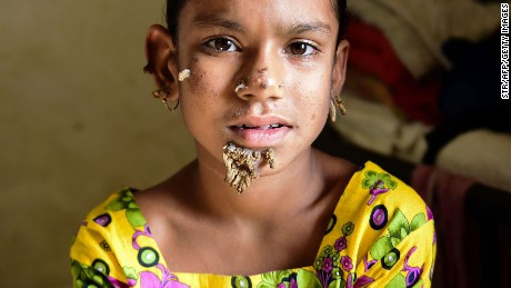 In this photograph taken on January 30, 2017, Bangladeshi patient Sahana Khatun, 10, poses for a photograph at the Dhaka Medical College and Hospital.