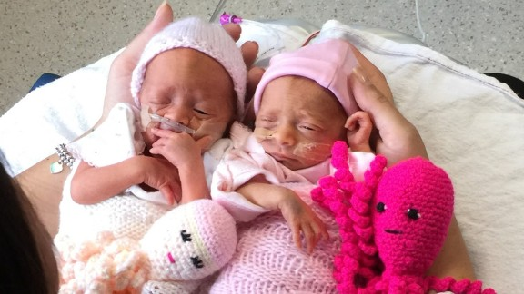 Mother Kat Smith holds her twins and their octopi at Poole Hospital.