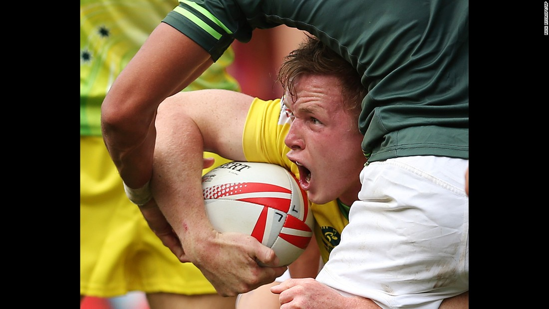 "Australian rugby player Henry Hutchison calls for help during a Sevens World Series match against South Africa on Sunday, February 5. South Africa <a href=""http://www.cnn.com/2017/02/05/sport/rugby-sevens-south-africa-england-sydney-world-series/"" target=""_blank"">went on to win the tournament</a> in Sydney."