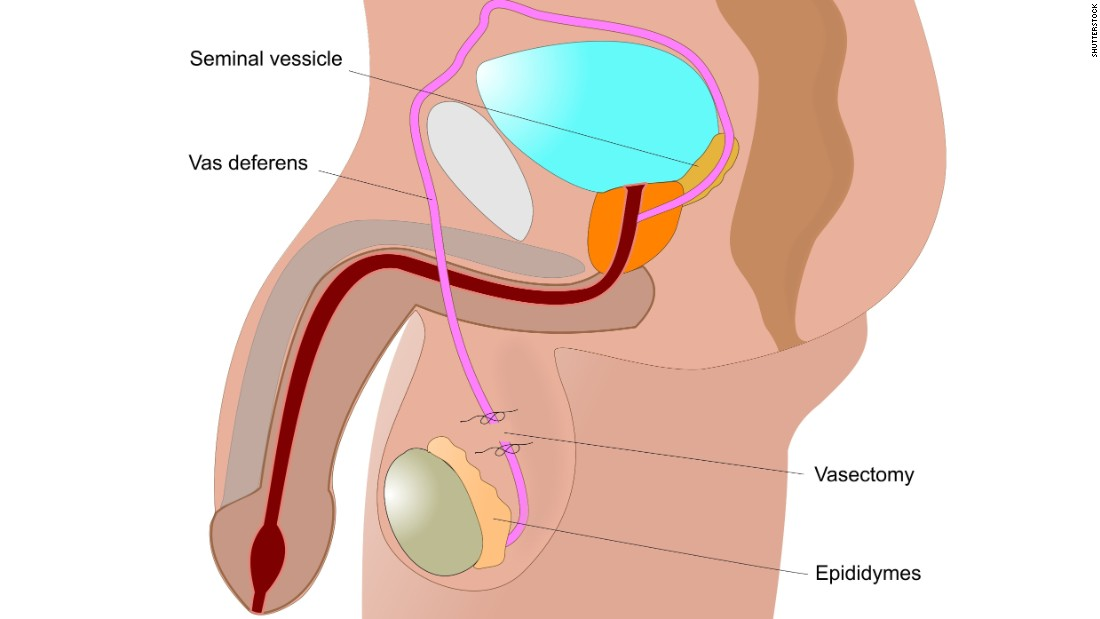 During a vasectomy, a surgeon cuts the vas deferens, the tubes that carry sperm from the testicles. It has a failure rate of about 0.15% and can be reversed, but the procedure is complicated.