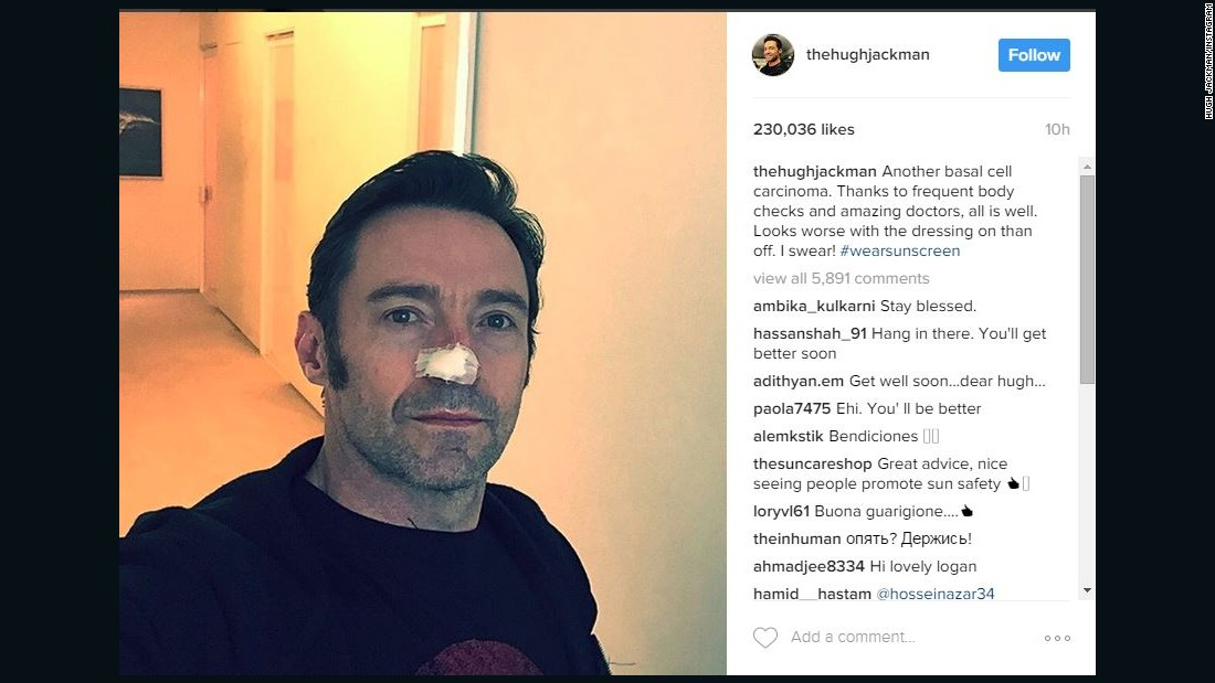 """Wolverine"" actor Hugh Jackman appeared with a bandage on his nose in a 2013 Instagram post in which he revealed he had undergone treatment for basal cell carcinoma. The actor has had more procedures for the skin cancer. He promotes the use of sunscreen and advises his followers to get checked frequently."