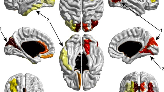 Figure 2 | Cortical regions that show significant expansion in surface area from 6 to 12 months in HR-ASD. 