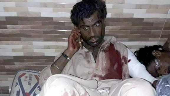 An injured man talks on the phone at a hospital after a bomb explosion in the Lal Shahbaz Qalandar shrine on Thursday, February 16, 2017.
