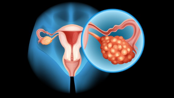 """Ovarian cancer is a rare but deadly reason for a bloated belly. It usually goes along with other <a href=""""http://www.bmj.com/content/339/bmj.b2998"""" target=""""_blank"""" target=""""_blank"""">telltale signs </a>such as abdominal pain, urinary frequency, postmenopausal and anal bleeding, and a loss of appetite. So if you've suddenly developed abdominal distension in the past few months and have any of these other symptoms, see a doctor immediately. And don't rely on the results of your Pap test; that's effective only in the early detection of cervical cancer."""