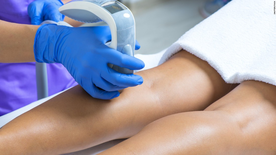 Laser hair removal, intended to remove unwanted hair from various parts of the body, was the fourth most-popular, with 1.1 million procedures.