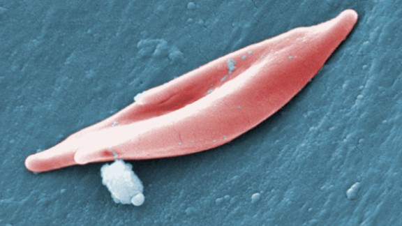 "2009 Sickle Cell Foundation of Georgia: Jackie George, Beverly Sinclair  This scanning electron micrograph (SEM) revealed some of the comparative ultrastructural morphology between normal red blood cells (RBCs), and a sickle cell RBC (upper right) found in a blood specimen of an 18 year old female patient with sickle cell anemia, (HbSS); People who have this form of sickle cell disease inherit two sickle cell genes (""S""), one from each parent. This is commonly called ""sickle cell anemia"", and is usually the most severe form of the disease. See PHIL 11688 for a colorized version of this image.  Sickle cell disease is a group of inherited red blood cell disorders. Healthy red blood cells are round, and they move through small blood vessels to carry oxygen to all parts of the body. In sickle cell disease, the red blood cells become hard and sticky and look like a C-shaped farm tool called a ""sickle"". The sickle cells die early, which causes a constant shortage of red blood cells. Also, when they travel through small blood vessels, they get stuck and clog the blood flow. This can cause pain and other serious problems."