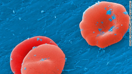 Sickle cell anemia patient 'cured' by gene therapy