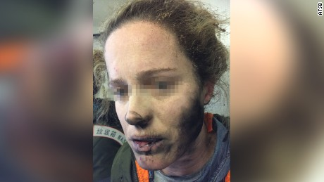 A passenger on an international flight, pictured, said her headphones caught on fire midflight.