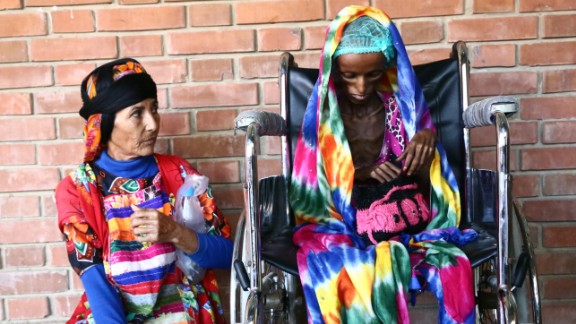 TOPSHOT - The mother of Saida Ahmad Baghili, an 18-year-old Yemeni woman from an impoverished coastal village on the outskirts of the rebel-held Yemeni port city of Hodeida where malnutrition has hit the population hard, looks at her daughter in a wheelchair at the al-Thawra hospital in Hodeidah where she is receiving treatment for severe malnutrition on October 25, 2016. The UN