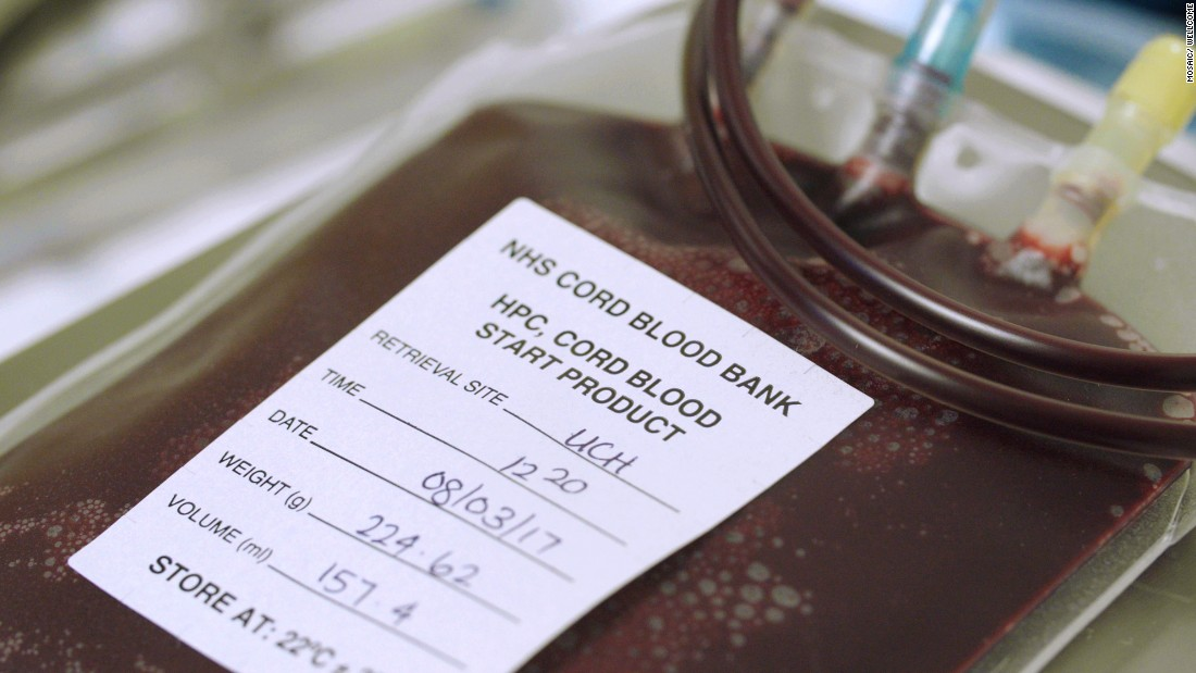 Blood extracted from an umbilical cord at University College London Hospital in March. It can be used to treat more than 80 conditions, including leukemia.