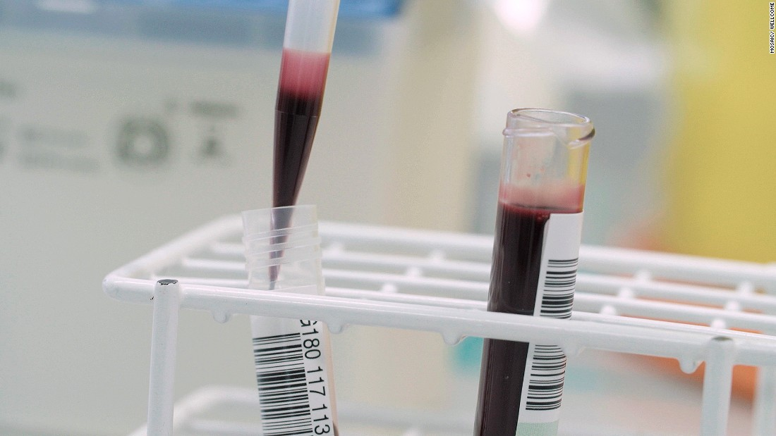 Blood from an umbilical cord and placenta is analyzed.
