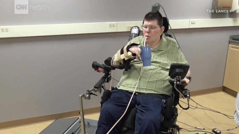[Image: 170328190515-paralyzed-man-moves-hand-00...ge-169.jpg]