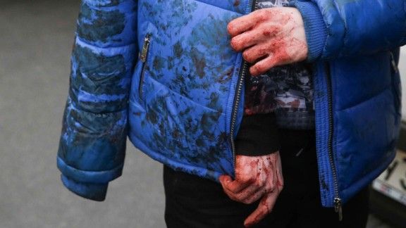 APRIL 3, 2017 - St. Petersburg, Russia - A man with bleeding hands at the entrance to Tekhnologichesky Institut station of the St Petersburg metro in the aftermath of an explosion which occurred in a train at 14:40 Moscow time; according to Russian National Antiterrorism Committee several people were killed in the explosion. (Credit Image: © Vaganov Anton/TASS via ZUMA Press)