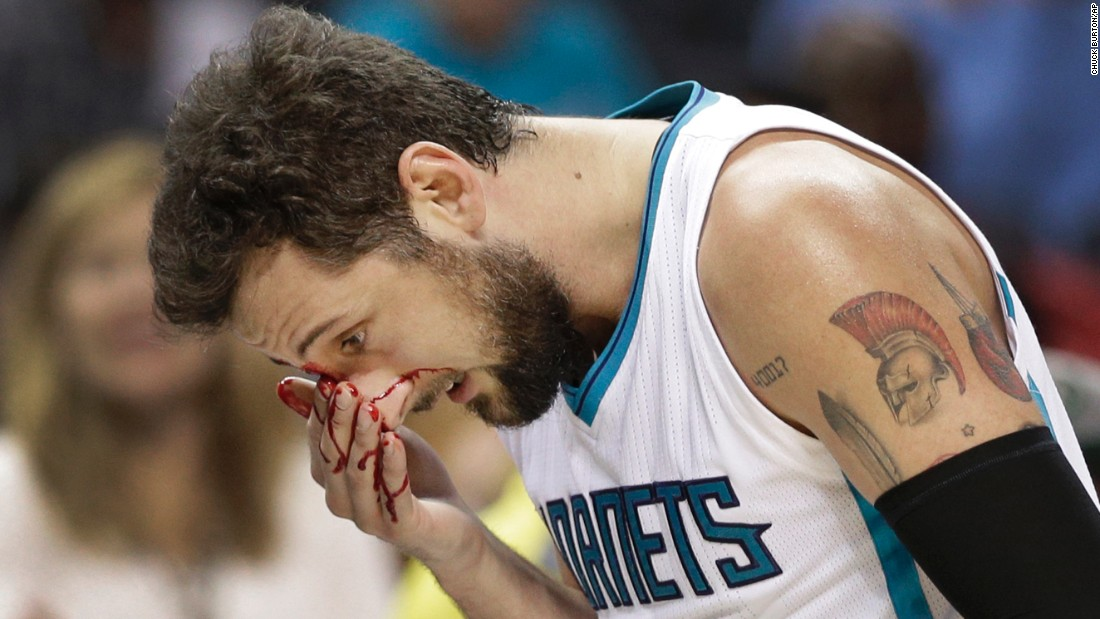 Blood flows from the face of Marco Belinelli during an NBA basketball game in Charlotte, North Carolina, on Tuesday, March 28. Belinelli had to leave the game after a collision with another player caused a cut above his right eye.