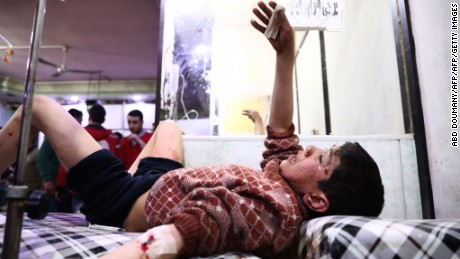 TOPSHOT - EDITORS NOTE: Graphic content / A wounded Syrian youth gestures at a makeshift clinic following reported air strikes by government forces in the rebel-held town of Douma, on the eastern outskirts of Damascus, on April 3, 2017. Air strikes by Syrian warplanes on a rebel-held region near Damascus killed at least 22 civilians, the Syrian Observatory for Human Rights monitor said. / AFP PHOTO / Abd Doumany        (Photo credit should read ABD DOUMANY/AFP/Getty Images)