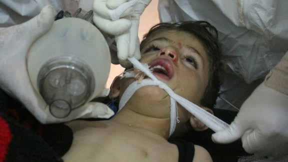 In this photo provided by the Idlib Media Center, doctors treat a child after the suspected attack.