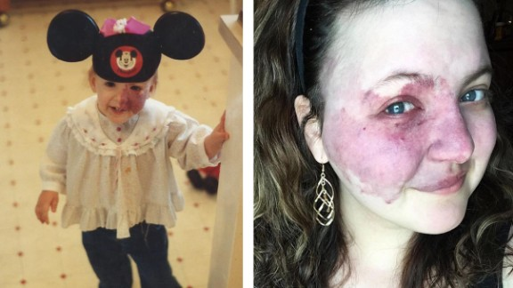 Crystal Hodges has had a birthmark on the left side of her face since birth. Roughly three in 1,000 people have this type of birthmark, called a port-wine stain.