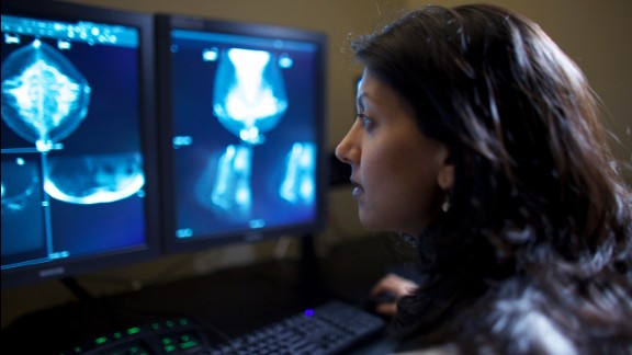 Dr. Mitva Patel, a breast radiologist at the Ohio State University Comprehensive Cancer Center-Arthur G. James Cancer Hospital and Richard J. Solove Research Institute, routinely evaluates mammograms. She believes women should start getting mammograms at age 40.