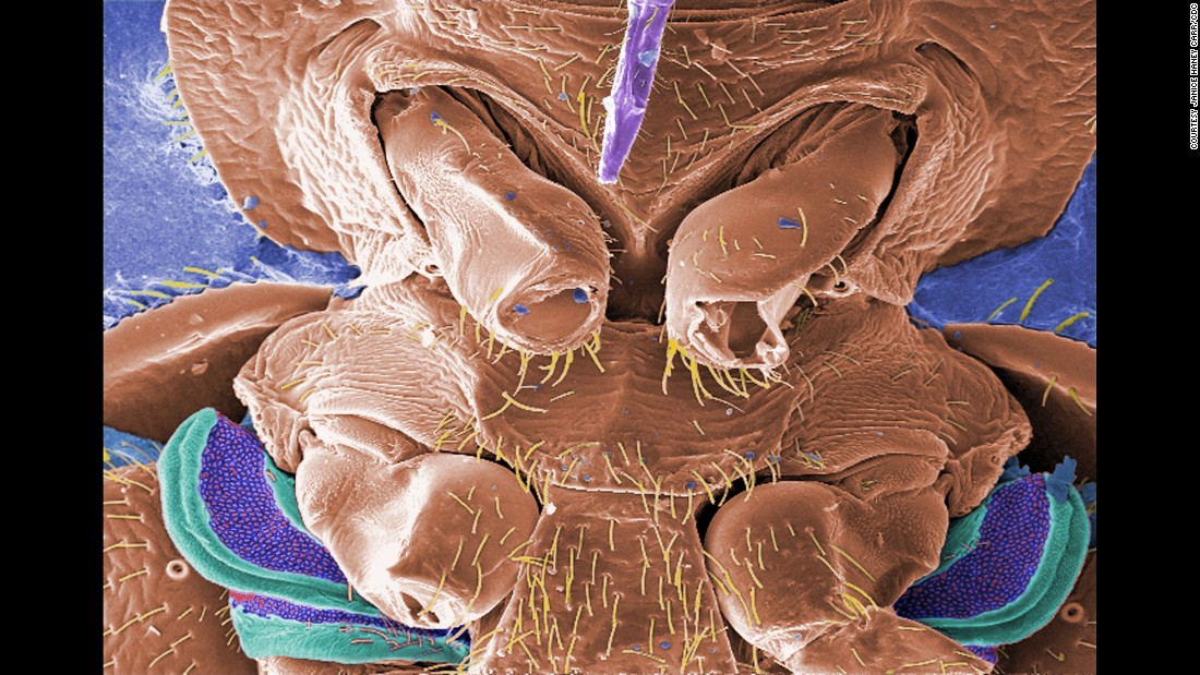 This micrograph shows a few of the six jointed legs of a bedbug. <br /><br />Scientists believe that the purple and green structures are the scent gland, responsible for a cloyingly sweet, musky odor the bug emits, one way to identify an infestation.