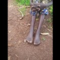01 Uganda elephantiasis mystery soil_early-dse