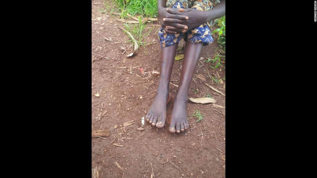 This method of contracting the disease, through volcanic soil, is known as podoconiosis, or non-filarial elephantiasis. Pictured, an early manifestation of podoconiosis, involving mild lymphedema (swelling) with a few warty growths on the feet.