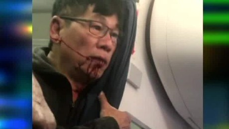 United passenger shown bleeding after incident