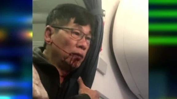 united flight passenger video after incident john klaassen intv ctn_00003430.jpg