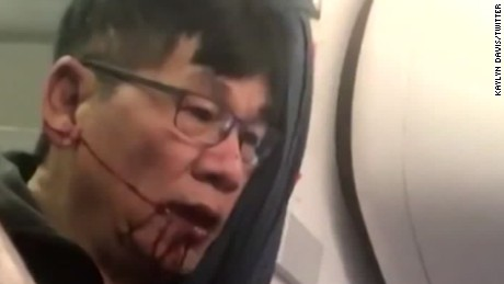 Man dragged off plane: 5 key questions on United's $800 mistake