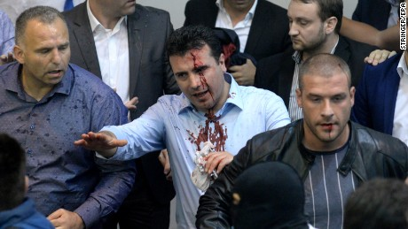 With blood on his face, Zoran Zaev, the leader of Social Democratic Union of Macedonia, tries to leave the Macedonian Parliament in Skopje, 27 April 2017.