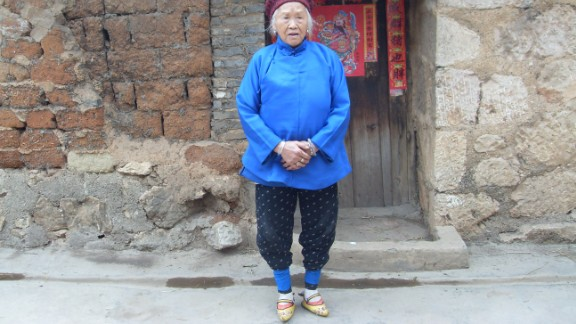 A woman with yellow embroidered shoes in Yunnan, China.
