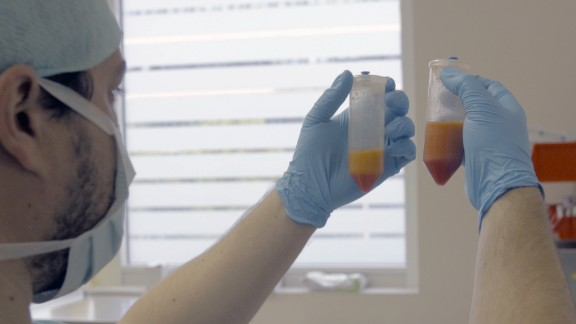 Stem cells are taken from fat tissue with a liposuction procedure. An enzyme mixture helps to separate the stem cells from oil and fat tissue, with the stem cells settling at the bottom of the vial.