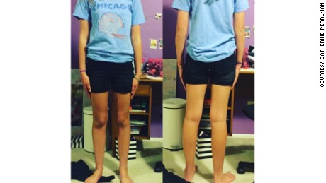 Catherine Pearlman's daughter in the shorts that she says violated her school's dress code.