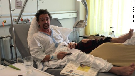 Richard Hammond is in hospital after suffering injuries in a car crash.