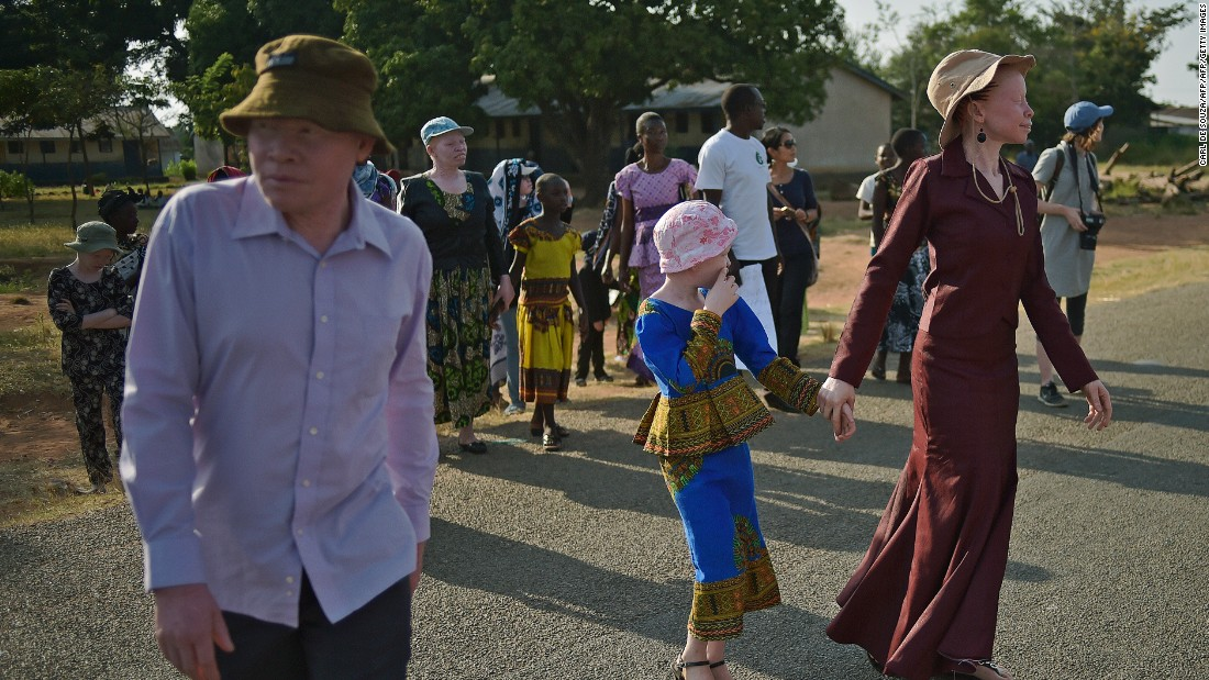 Ukerewe Island in Lake Victoria has become a a safe haven for a community of Tanzanians living with albinism. Many albinos face threats from organ and limb harvesters, and wider ostracism is also a problem.