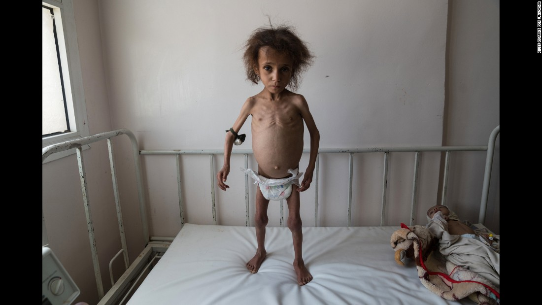 Batool Ali, aged 6, stands on a hospital bed in Saada City, Yemen. Batool is suffering from severe acute malnutrition. The pouch attached to her arm contains a potion used to ward off snakes while families take shelter in the desert overnight.