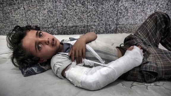 A young boy lies in the emergency room awaiting treatment of Al Joumhouri Hospital in the Yemeni capital, Sana'a.