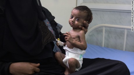 AL THAWRA HOSPITAL, AL HUDAYDAH, YEMEN - 15 APRIL 2017.