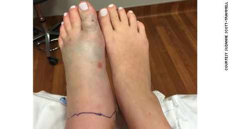Meg Trammell's swollen snake-bitten foot as compared to her other foot