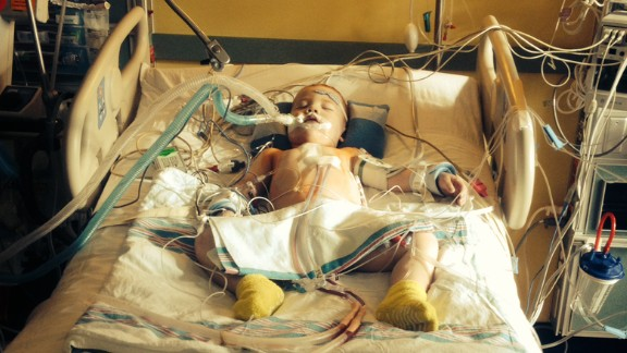 Jack Foley underwent three surgeries after doctors discovered before he was born that the left side of his heart was not developing.