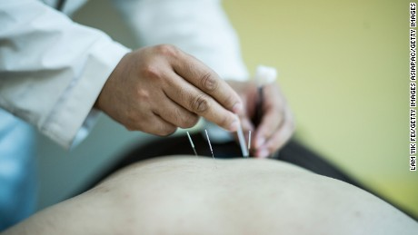New laws sparks debate over the future of traditional Chinese medicine