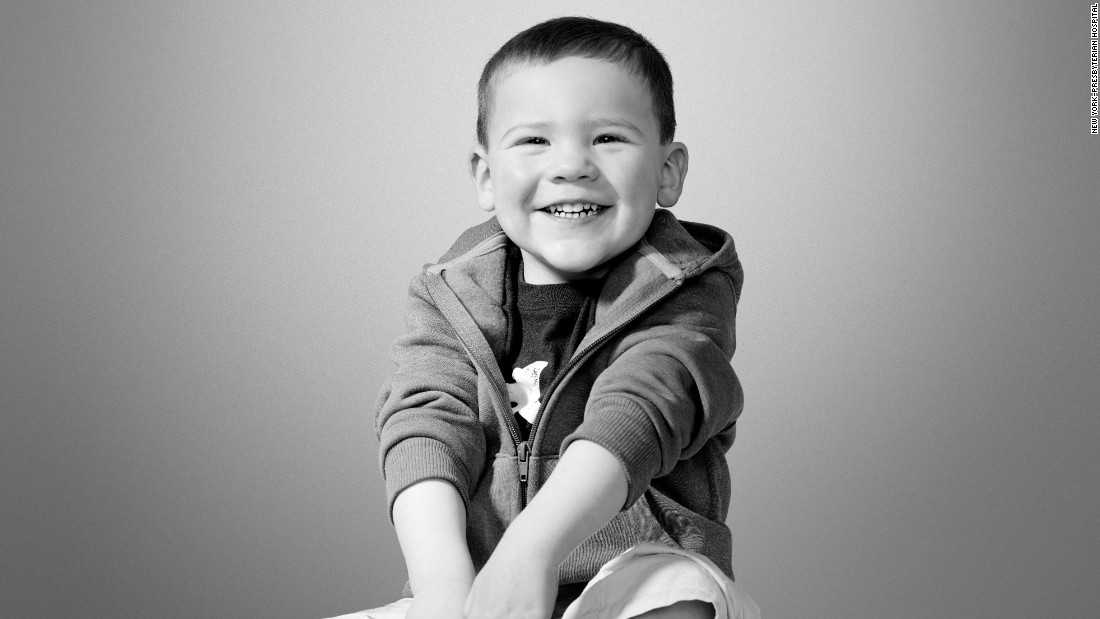 Congenital heart defect is one of the most common types of birth defects. But thanks to the doctors at Morgan Stanley Children's Hospital of NewYork-Presbyterian, Jack is leading an active lifestyle.