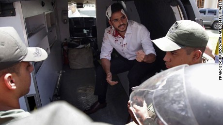 Opposition deputy Armando Armas  is assisted after being injured by supporters of Venezuelan President Nicolas Maduro.