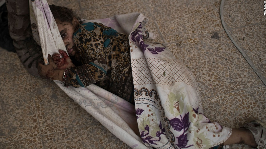 "This injured girl was found by Iraqi forces as they <a href=""http://www.cnn.com/2017/06/29/middleeast/iraq-mosul-fighting/index.html"" target=""_blank"">advanced against ISIS militants</a> in the Old City of Mosul on Monday, July 3. She was carried away for medical assistance."