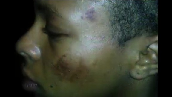 A screengrab from an NAACP video showing Tatyana Hargrove's injuries.