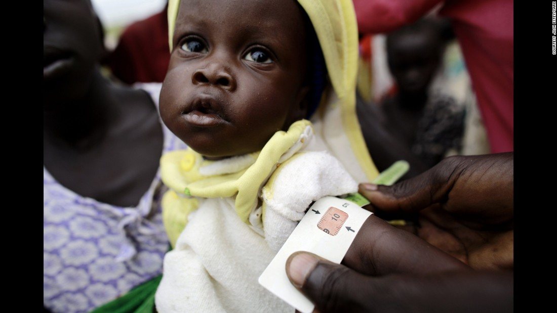 In a remote village in South Sudan, CARE conducts nutrition and vaccination outreach to help people displaced by conflict and flooding.  Children were weighed and measured to determine malnourishment.