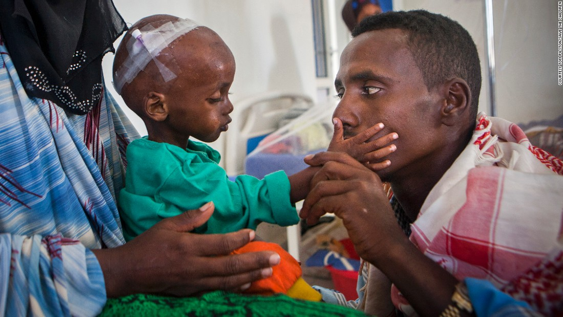 A 15-month-old boy suffering from malnutrition and related complications was brought to a hospital in Somalia by his parents.
