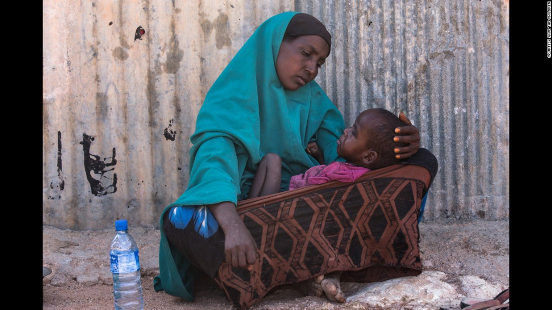 Hodan, a mother of five, holds her 2-year-old son in the town of Kiridh, Somalia. The boy went blind following illness as an infant and now suffers from severe malnutrition. The nearest hospital is several hours away.